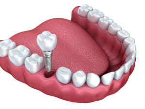 Pasadena dental implants | Image of implants